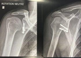 Butée épaule orthopédie langon Chirurgie-Orthopédique-Langon