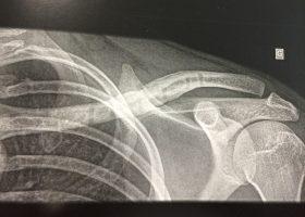 Fracture clavicule Chirurgie-Orthopédique-Langon