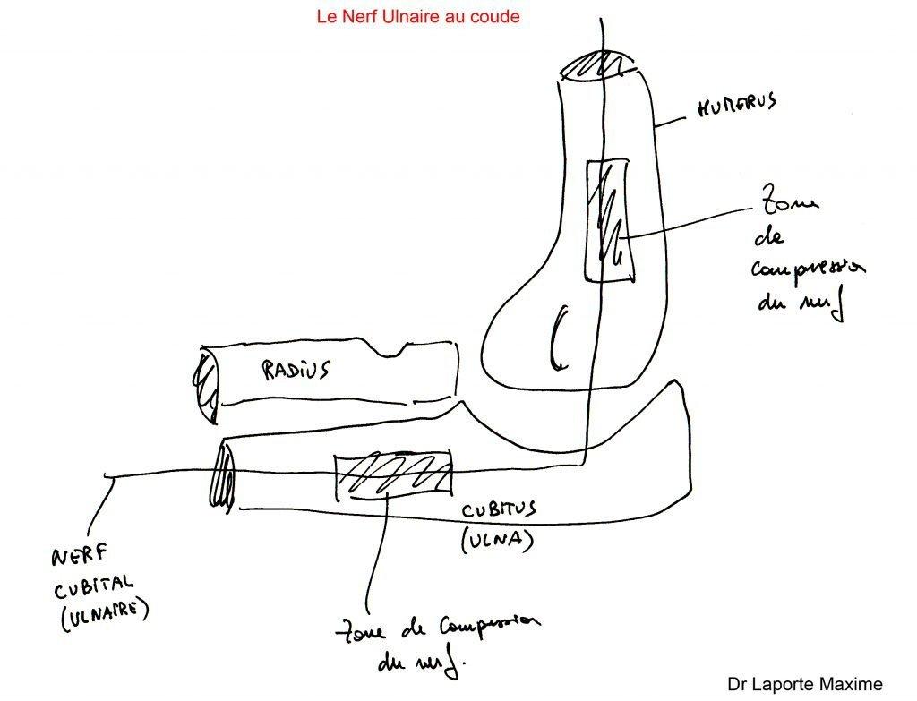Nerf-Ulnaire-au-coude-Chirurgie-Orthopédique-Langon