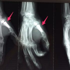 Rhizarthrose (arthroplastie trapézo-métacarpienne) Chirurgie-Orthopédique-Langon