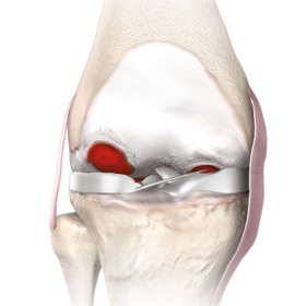 genou-arthrose-chirurgie-robot