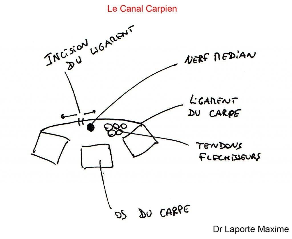Canal-Carpien-Chirurgie-Orthopédique-Langon