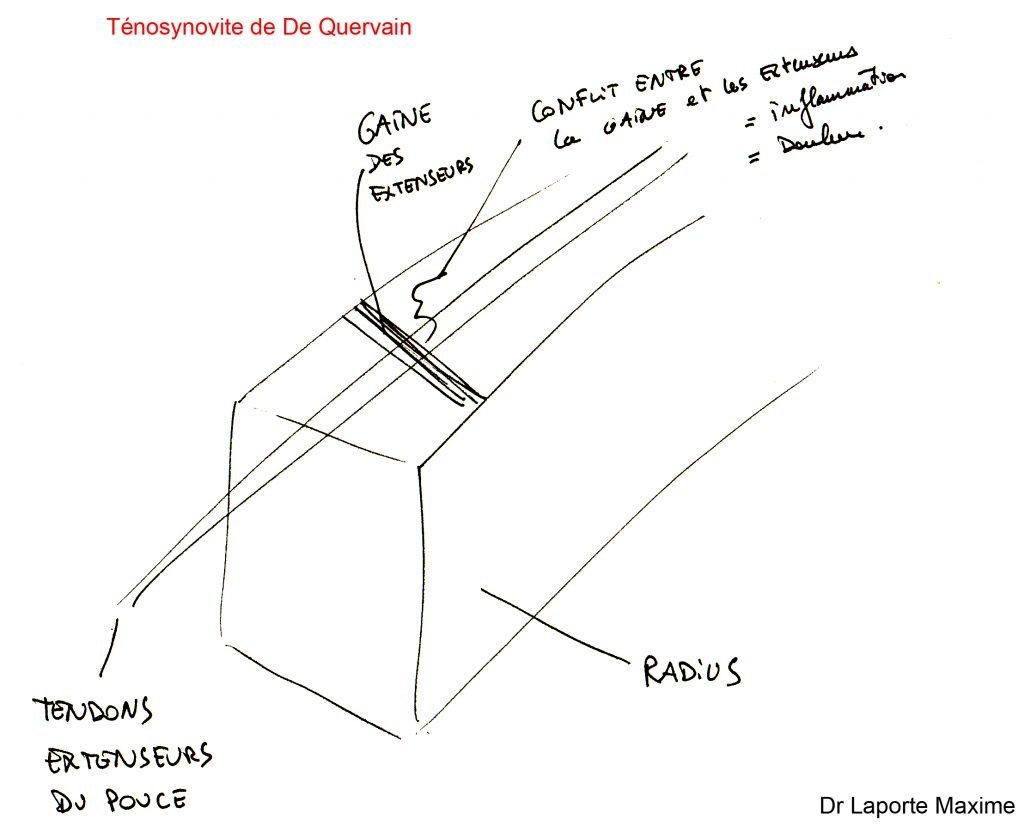 Ténosynovite-de-De-Quervain-Chirurgie-Orthopédique-Langon